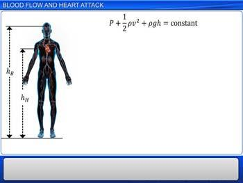 Animated video Lecture for Blood Flow and Heart Attack