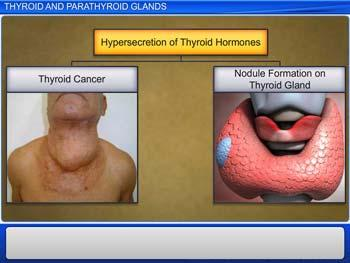 Animated video Lecture for Thyroid and Parathyroid Glands